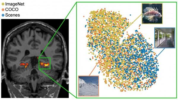 Dataset Bridges Human Vision and Machine Learning